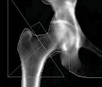 Изображение тазобедренного сустава, полученное при проведении двухэнергетической рентгеновской абсорбциометрии для измерения плотности костной ткани (фото любезно предоставлено доктором Энтони Морроу (Anthony Morrow)).