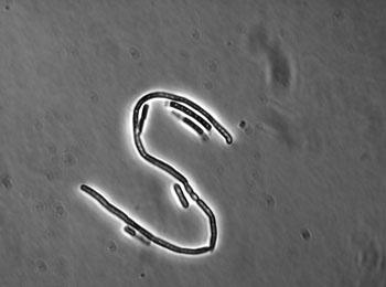 Image: Light micrograph of Bacillus cereus in a small colony variant (SCV) (Photo courtesy of Markus Kranzler/Vetmeduni Vienna).