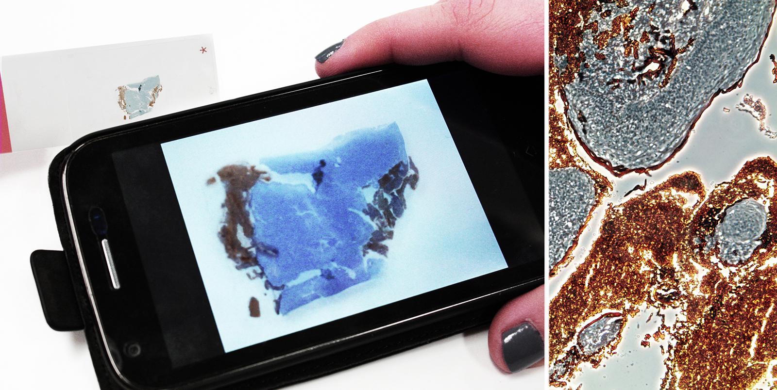 Камеры мобильного телефона достаточно, чтобы исследовать образцы ткани на присутствие опухолевых клеток (фото любезно предоставлено Институтом прикладных исследований полимеров имени Фраунхофера).