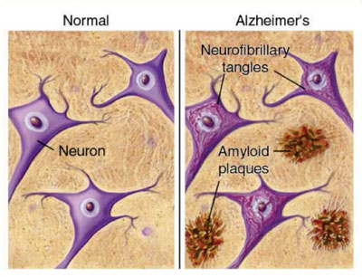 Схематическое изображение образования амилоидных бляшек в головном мозге, пораженном болезнью Альцгеймера, по сравнению со здоровым мозгом (фото любезно предоставлено Юнджи Такано (Junji Takano)).