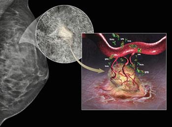 Диагностический тест Videssa Breast обеспечивает точное раннее обнаружение и определение типа злокачественной опухоли молочной железы, объединяя данные анатомического исследования, полученные методами диагностической визуализации, с данными протеомного анализа белков, выделенных в кровеносную систему злокачественными опухолями (фото любезно предоставлено компанией Provista Diagnostics).