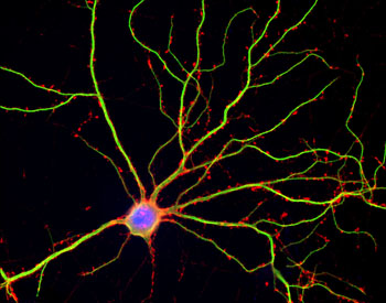 Image: A photomicrograph of a human neuron in culture (Photo courtesy of Shelley Halpain, University of California, San Diego).