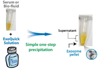 Image: The ExoQuick preparation method obtains high-quality exosomes from most biofluids using a protocol that can easily be performed on multiple samples and requires very low volumes of input sample (Photo courtesy of System Biosciences).