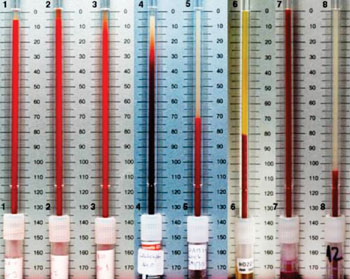 Image: Erythrocyte Sedimentation Rate (ESR) from various conditions (Photo courtesy of Getty Images).