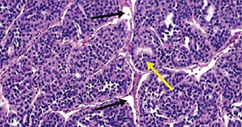 Image: A histopathology of insular thyroid carcinoma, showing the nesting patterns of the follicles (yellow arrow) and the artefactually created clefts (black arrows) (Photo courtesy of H. Lee Moffitt Cancer Center).
