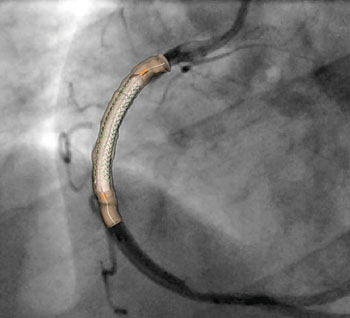 Image: A percutaneous coronary intervention: a 28mm stent deployment in a patient specific right coronary artery. The expansion is projected to the angiographic image (Photo courtesy of iStock).