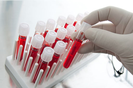 Image: Hologic is selling its share of the Procleix blood-screening business to Grifols (Photo courtesy of iStock).
