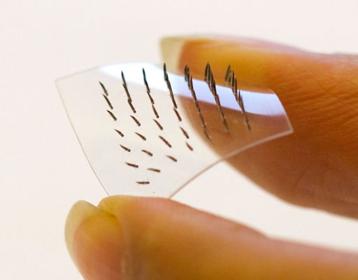 Image: The new microneedle patch was made more flexible by developing a base of molded thiol-ene-epoxy-based thermoset film. This version conformed well to deformations of the skin surface and each of its 50 needles penetrated the skin during a 30-minute test. A flexible base combined with stainless steel needles could make the patch an effective alternative for various applications (Photo courtesy of KTH Royal Institute of Technology).