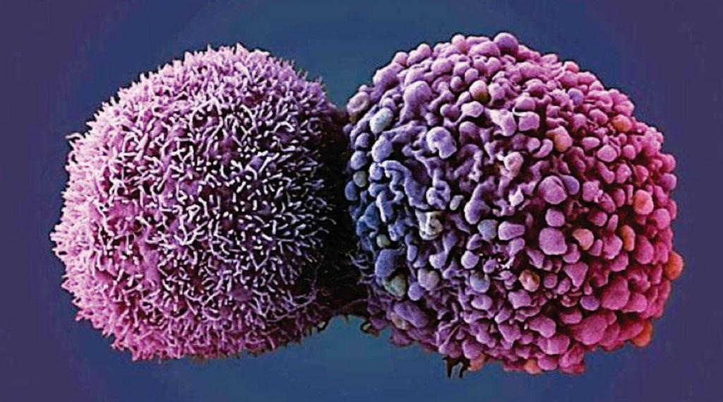 图片:两个肺癌细胞的扫描电镜彩色显微图像(SEM)(图片蒙英国癌症研究所的Anne Weston惠赐)。