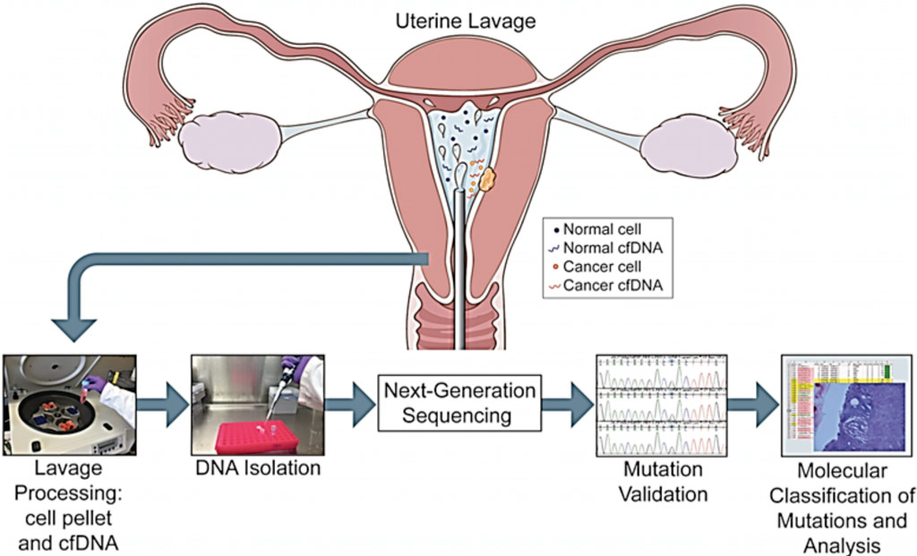 Image: Overview of the study pipeline beginning with collection of uterine lavage fluid at the initiation of hysteroscopy (Photo courtesy of Icahn School of Medicine at Mount Sinai).