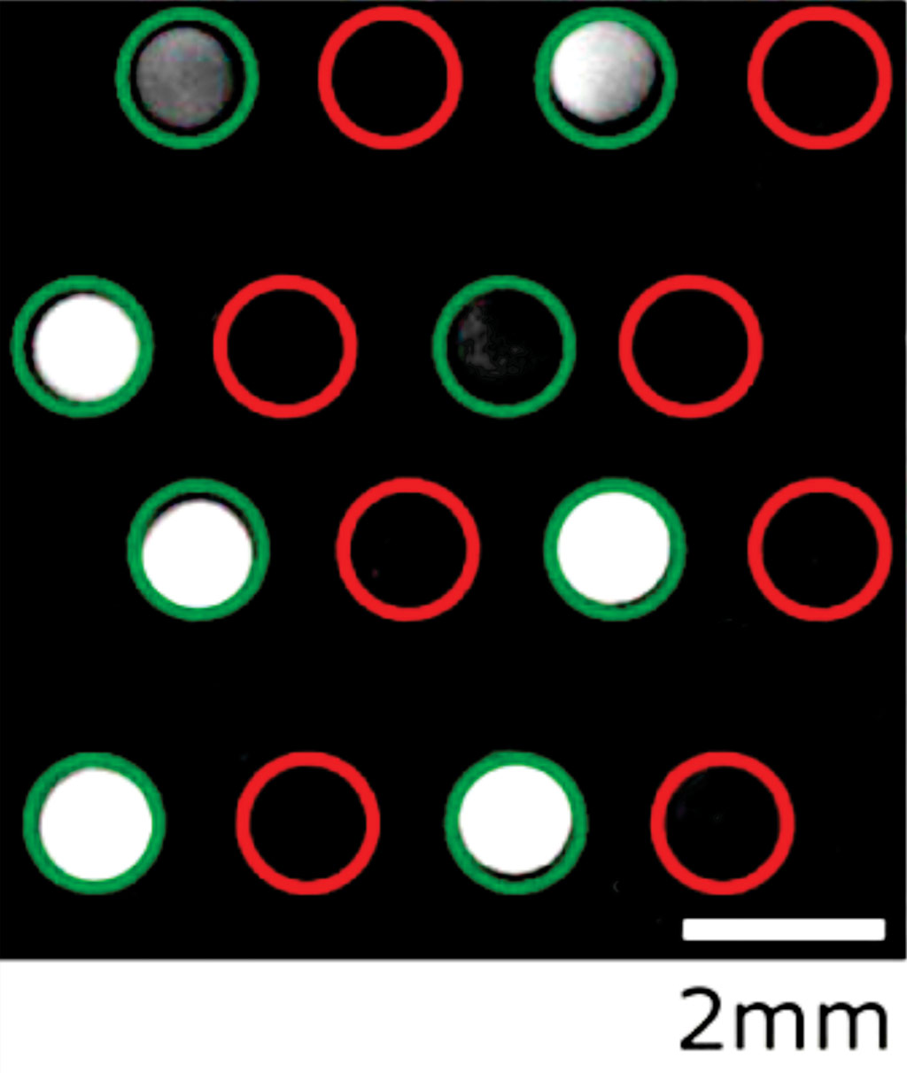 Image: Fluorescence from on-chip Recombinase Polymerase Amplifications assay for Staphylococcus aureus (Photo courtesy of Leibniz Institute of Polymer Research).