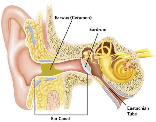 Image: Impacted cerumen (green-yellow in diagram) can completely obstruct the ear canal (Photo courtesy of Schwartz SR et al / American Academy of Otolaryngology – Head and Neck Surgery Foundation).