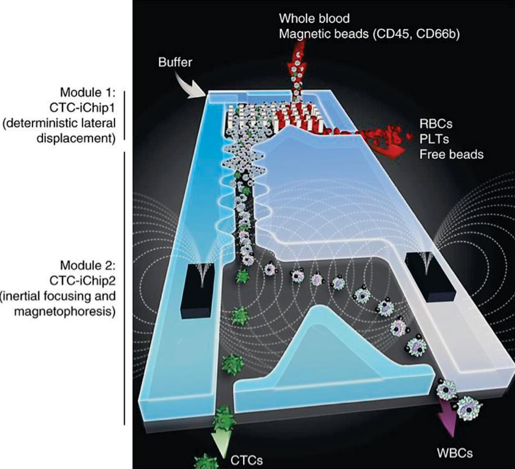 Image: The circulating tumor cells (CTC)-iChip is composed of two separate microfluidic devices that house three different microfluidic components engineered for inline operations (Photo courtesy of Massachusetts General Hospital).