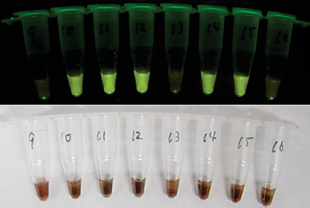 Image: Visual determination of positive and negative samples. Examples of malaria CZC-LAMP tubes after the reaction. It is not possible to determine positive or negative under natural light due to the interference by hemoglobin (lower). However, positive samples emit green fluorescence under 505 nm blue-green light (upper) (Photo courtesy of Hokkaido University School of Medicine).