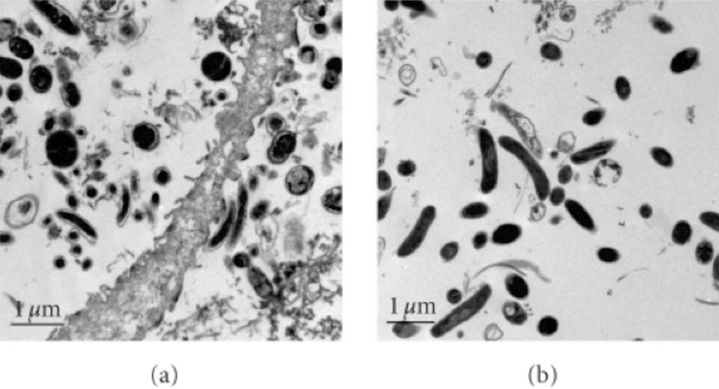 Image: (a) A scanning electron micrograph (SEM) of vaginal fluid from a woman with bacterial vaginosis and high concentrations of bacterial vaginosis associated bacterium 1 (BVAB1); (b) These cells are different from the larger, wider, and more electron dense curved rods observed in a pure culture of Mobiluncus curtisii (Photo courtesy of the US National Library of Medicine).