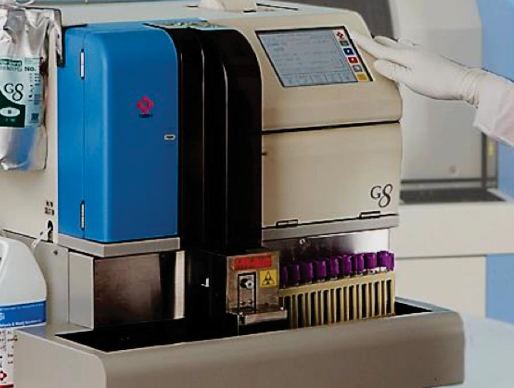 Image: The G8 HPLC analyzer for HbA1c measurement (Photo courtesy of Tosoh Bioscience).