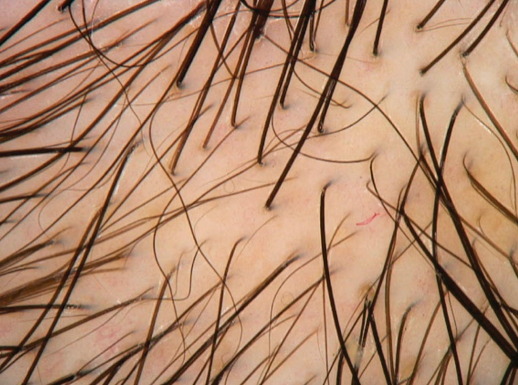 Image: Research shows analyzing cortisol levels in hair close to the scalp may be a reliable diagnostic method for Cushing\'s syndrome (Photo courtesy of Professor Antonella Tosti, MD).