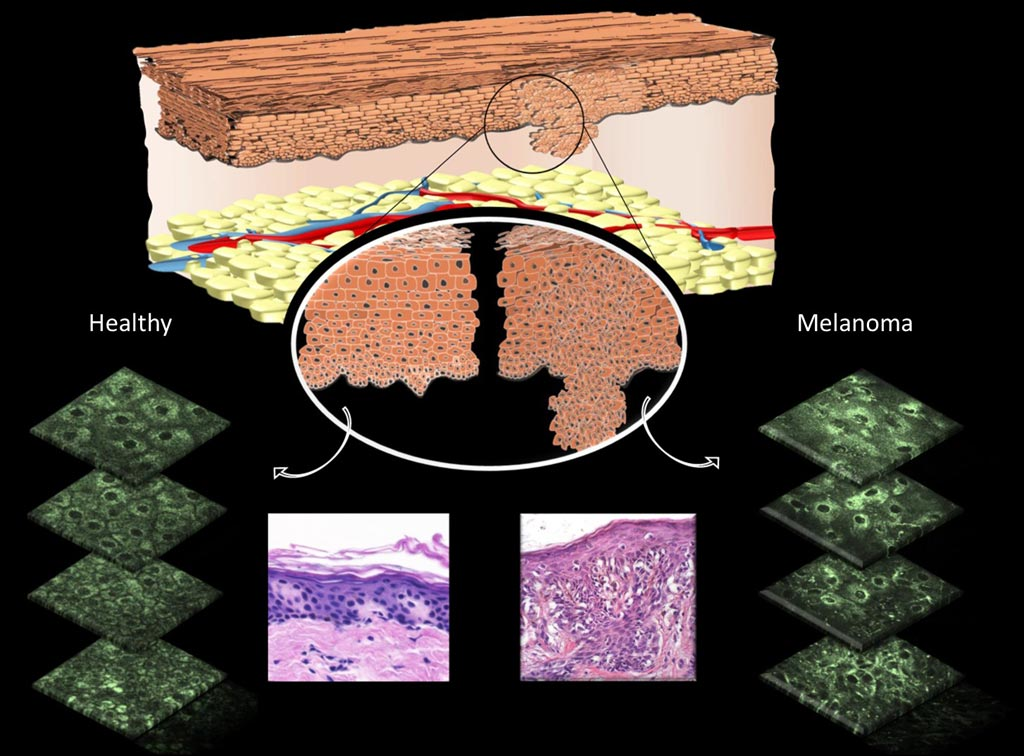 Image: A diagram showing differences that can be observed in cell morphology in normal skin cells versus melanomas (Photo courtesy of Irene Georgakoudi, Tufts University).