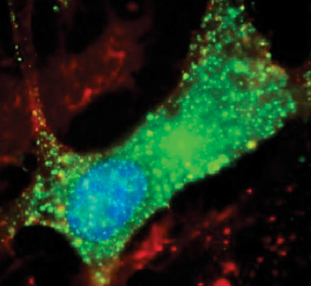 Image: New clues to Nodding syndrome: scientists discovered antibodies to leiomodin-1 (green) inside human brain cells. This study suggests that Nodding syndrome may be an autoimmune disease (Photo courtesy Dr. Avindra Nath, MD).