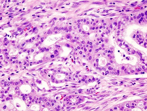 Image: A histopathogic image of pancreatic adenocarcinoma arising in the pancreas head region (Photo courtesy of Wikimedia Commons).