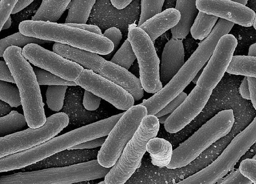 Image: A scanning electron micrograph (SEM) of cultured Escherichia coli, one of the many microbial species present in the human gut (Photo courtesy of Wikimedia).