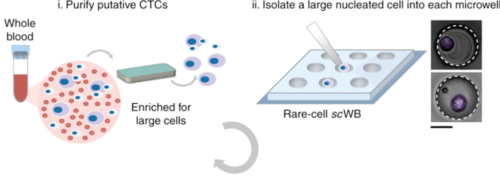Image: Microfluidic rare-cell workflow for multiplexed western blotting of single patient-derived CTCs (Photo courtesy of University of California – Berkeley).