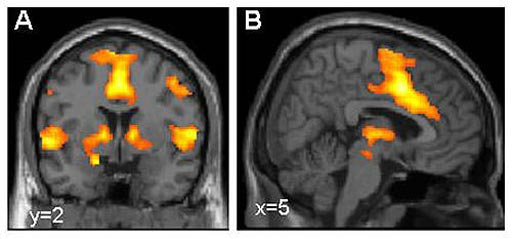Image: Activation of the brain\'s fear network visualized using functional magnetic resonance imaging (MRI) (Photo courtesy of Dr. Tina Lonsdorf, Systems Neuroscience UKE Hamburg).