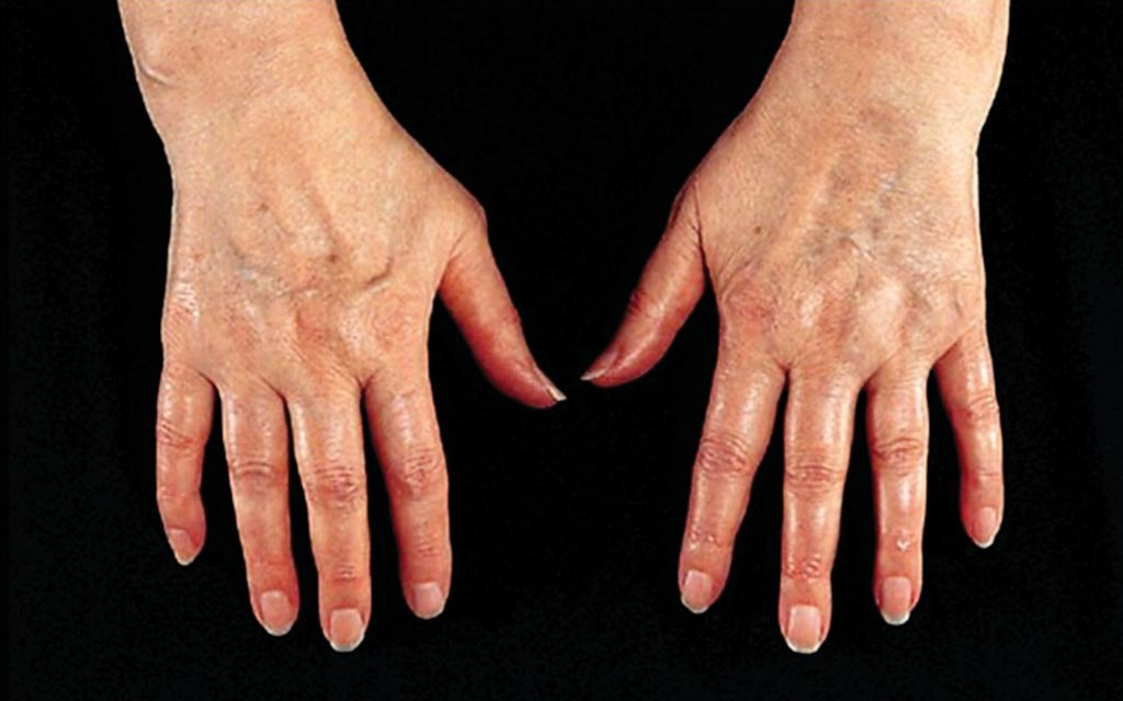 Image: The hands of a patient with early signs of rheumatoid arthritis (RA) (Photo courtesy of Dr. Gergely Péter).