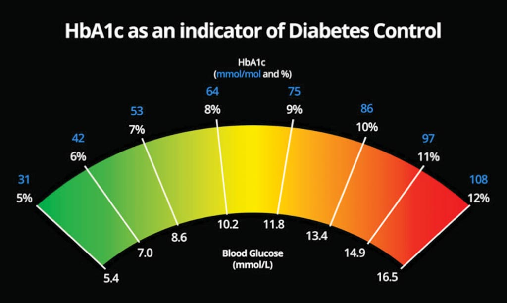 Image: A chart comparing blood glucose levels and HbA1c for diabetes control (Photo courtesy of Getty Images).