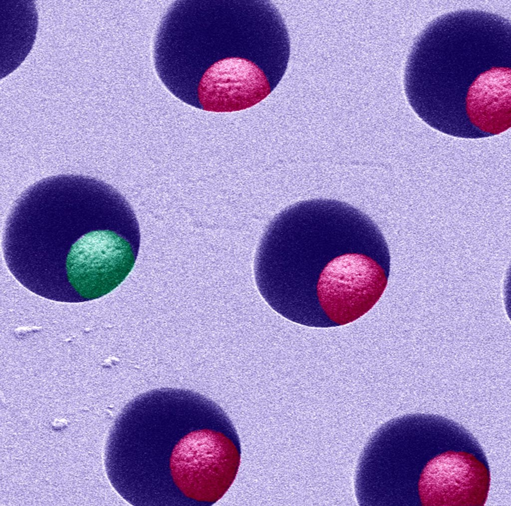 Image: A scanning electron micrograph (SEM) showing how the single-molecule array digital ELISA is carried out in tiny, femtoliter-volume wells containing beads capable of binding single molecules (Photo courtesy of Rodero MP et al).