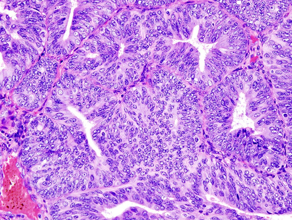 Image: A histologic view of an endometrial adenocarcinoma showing many abnormal nuclei (Photo courtesy of Wikimedia Commons).