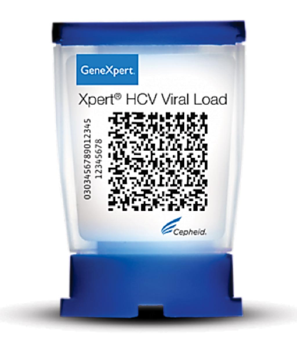 Image: The Xpert HCV Viral Load cartridge, a quantitative test that provides on-demand molecular testing for confirmation of infection and monitoring of Hepatitis C virus (HCV) (Photo courtesy of Cepheid).