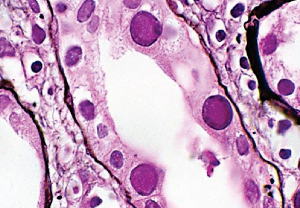 Image: The enlarged, basophilic, smudgy viral inclusions typical of BK polyoma virus nephropathy are seen in the tubular epithelium in this renal transplant case (Photo courtesy of Brent Weedman).