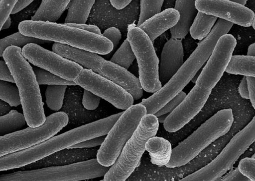 Image: Research shows that when drug-resistant bacteria such as e. coli enter the bloodstream, it can raise a person's risk for sepsis (Photo courtesy of the CDC).