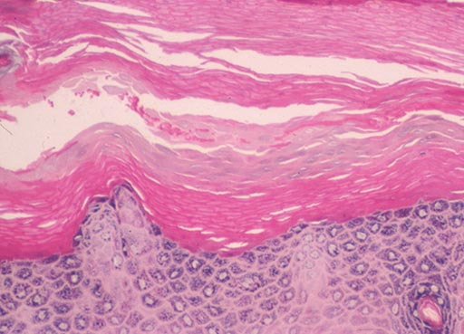 Image: A biopsy from the sole of the foot showing a recovered granular layer and a layer of parakeratosis sandwiched between the old orthokeratotic stratum corneum and a re-established orthokeratotic layer (Photo courtesy of SAMJ).