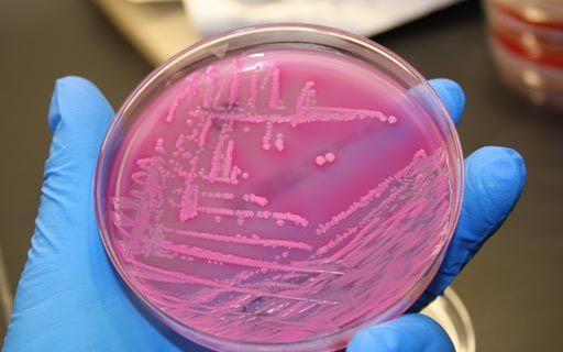 Image: E. coli (shown here growing on an agar plate) is three-fold more common in advanced NAFLD patients than early stage patients, according to a recent study (Photo courtesy of the University of California San Diego School of Medicine / J. Craig Venter Institute).