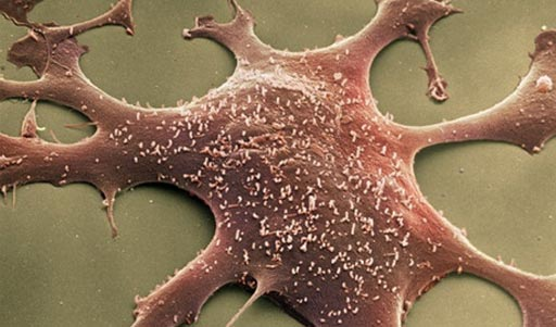 Image: Mycoplasma hominis, the bacteria responsible for a rare infection in transplant recipients (Photo courtesy of the Mayo Clinic).