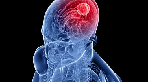 Image: New research shows changes in immune activity appear to signal a growing brain tumor up to five years before symptoms begin (Photo courtesy of iStock).