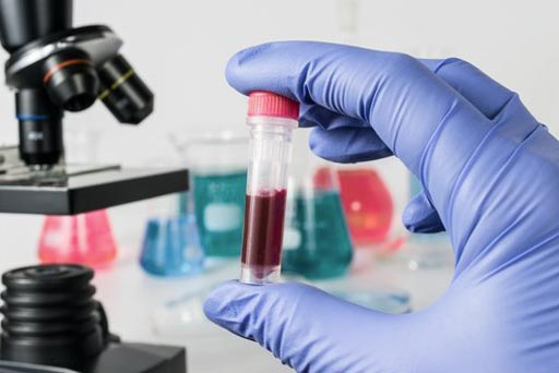 Image: A new test to aid in the detection of several leukemias and lymphomas has been approved by the FDA (Photio courtesy of Shutterstock).