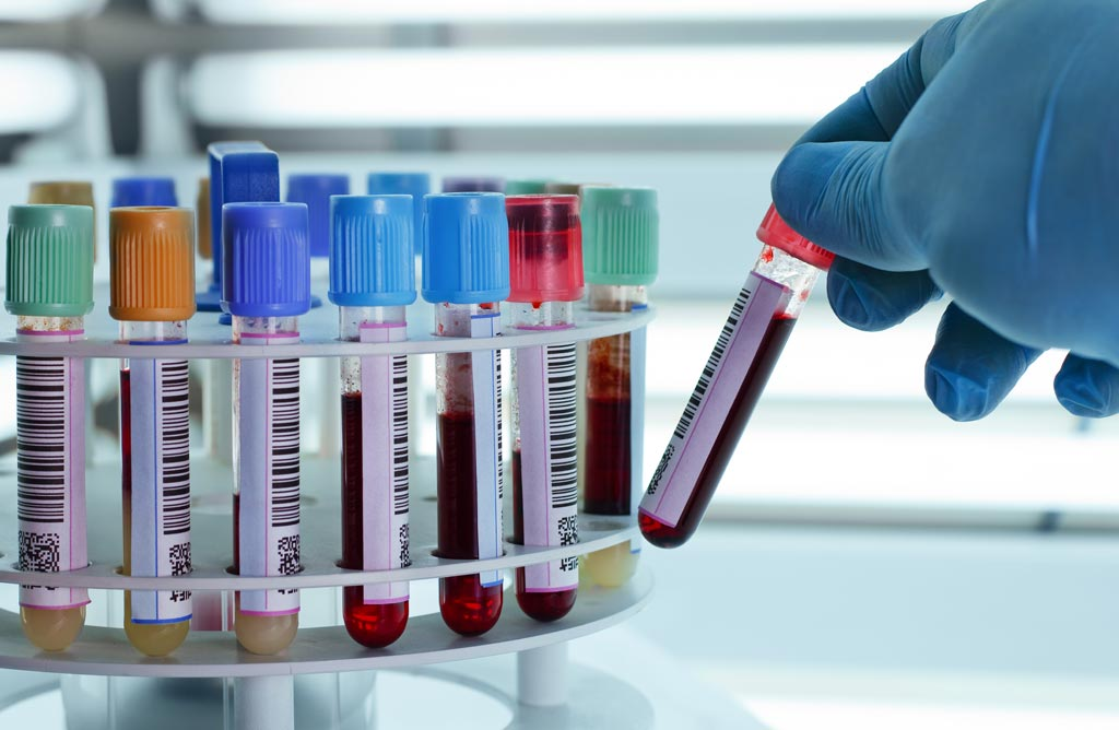 Image: The global clinical laboratory services market is expected to reach USD 327 billion by 2025 (Photo courtesy of Shutterstock).