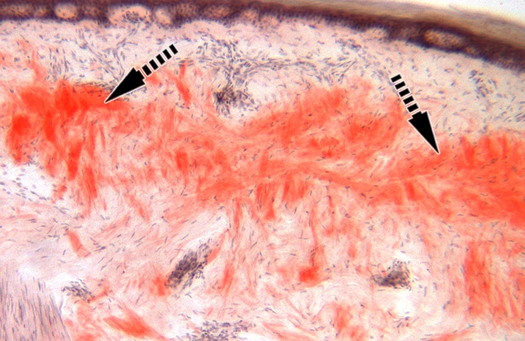 Image: A histopathology of a skin biopsy from a patient with amyloidosis. Protein clumps are in red (Photo courtesy of Professor Michael Polydefkis).
