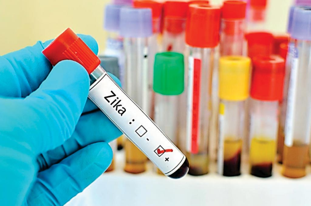 Image: A new blood test has been developed to differentiate Zika virus infection from other flaviviruses (Photo courtesy of Brett Israel, University of California-Berkeley).