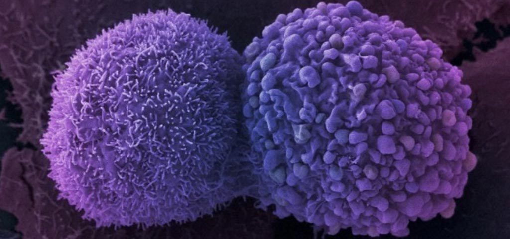 Image: Lung cancer cells. Researchers designed a new test to diagnose NSCLCs by testing for tumor cell RNA absorbed by circulating platelets (Photo courtesy of iStock).