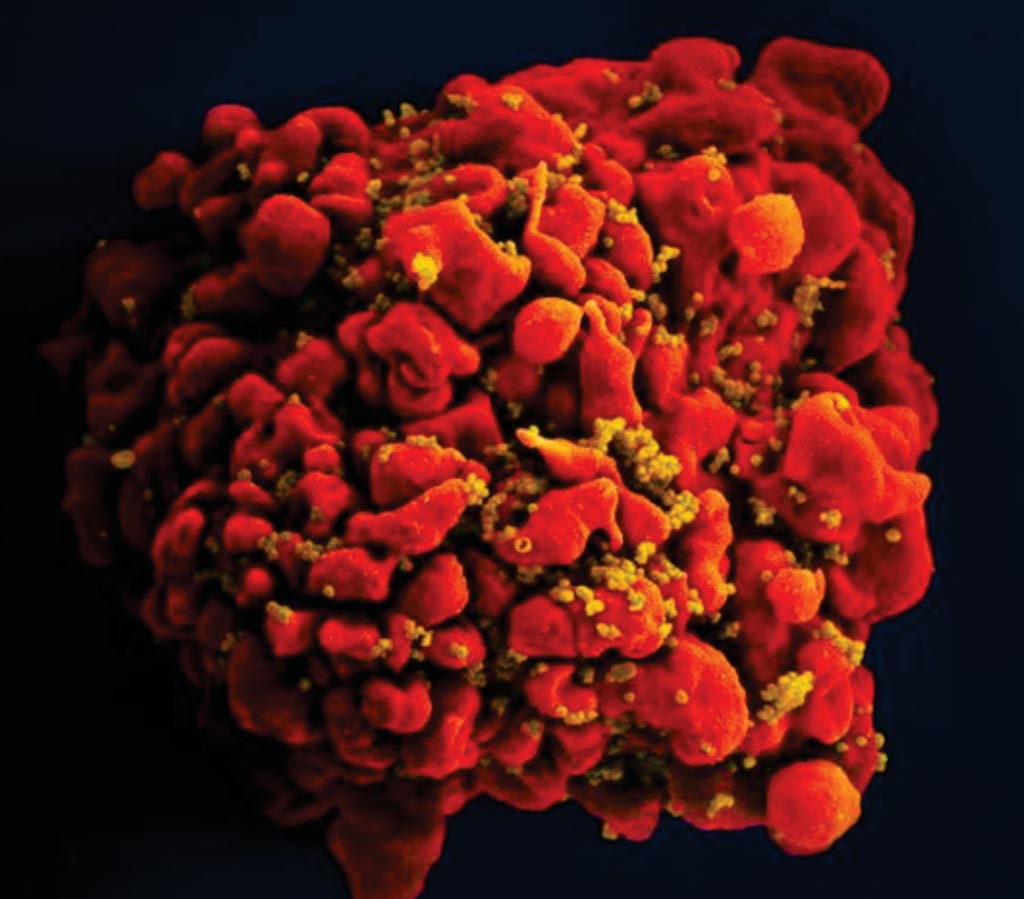 Image: A digitally colorized scanning electron micrograph of a T cell infected by numerous, spheroid-shaped, mustard-colored human immunodeficiency virus (HIV) particles, which can be seen attached to the cell\'s surface membrane (Photo courtesy of the US National Institute of Allergy and Infectious Diseases).