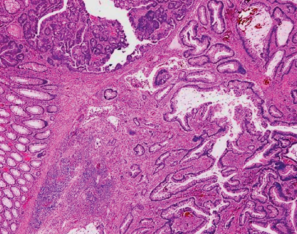 Image: A histologic section of a colonic adenoma containing invasive carcinoma (Photo courtesy of Dr. Mauro Risio).