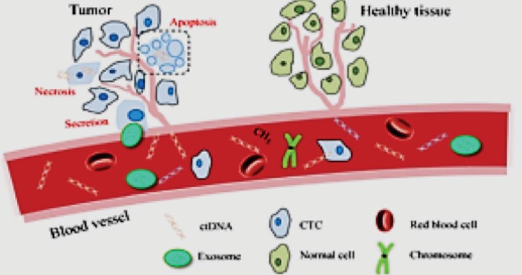 Image: A diagram for the basis of the MedOncAlyzer 170 panel (Photo courtesy of Exosome Diagnostics).