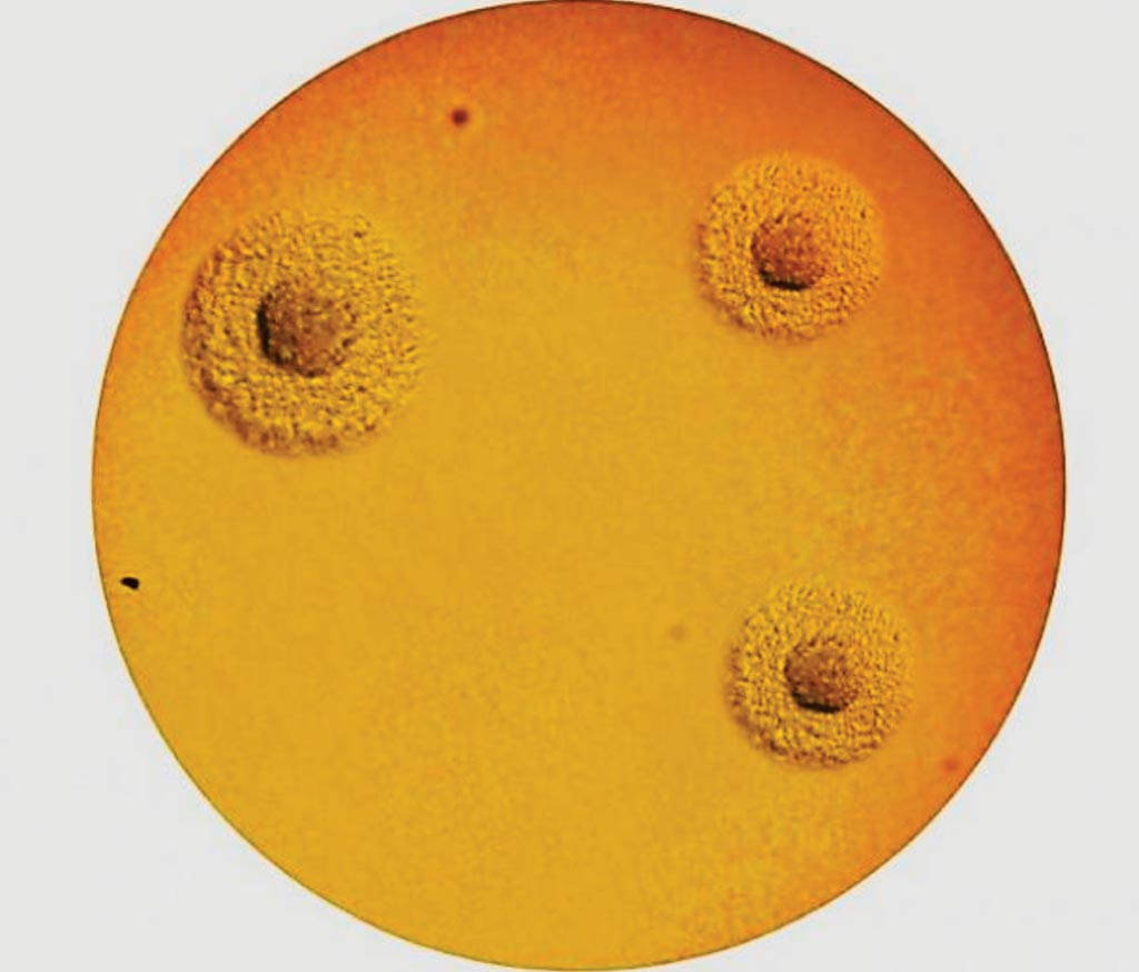 "Image: The A7 Agar enables the culture, semi-quantitative enumeration and the morphological identification (solid method) of Ureaplasma urealyticum and Mycoplasma hominis (Typical ""fried egg"" appearance""(Photo courtesy of the ELITech Group)."