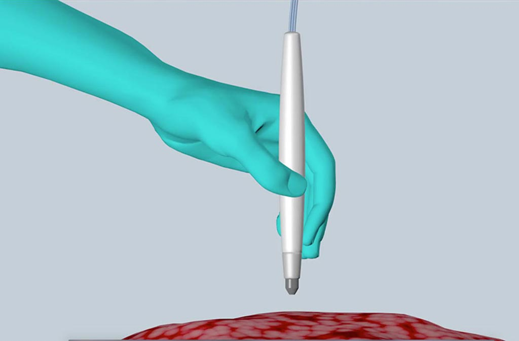 Image: The MasSpec Pen rapidly and accurately detects live cancer during surgery, helping improve treatment and reduce the chances of cancer recurrence (Photo courtesy of the University of Texas at Austin).