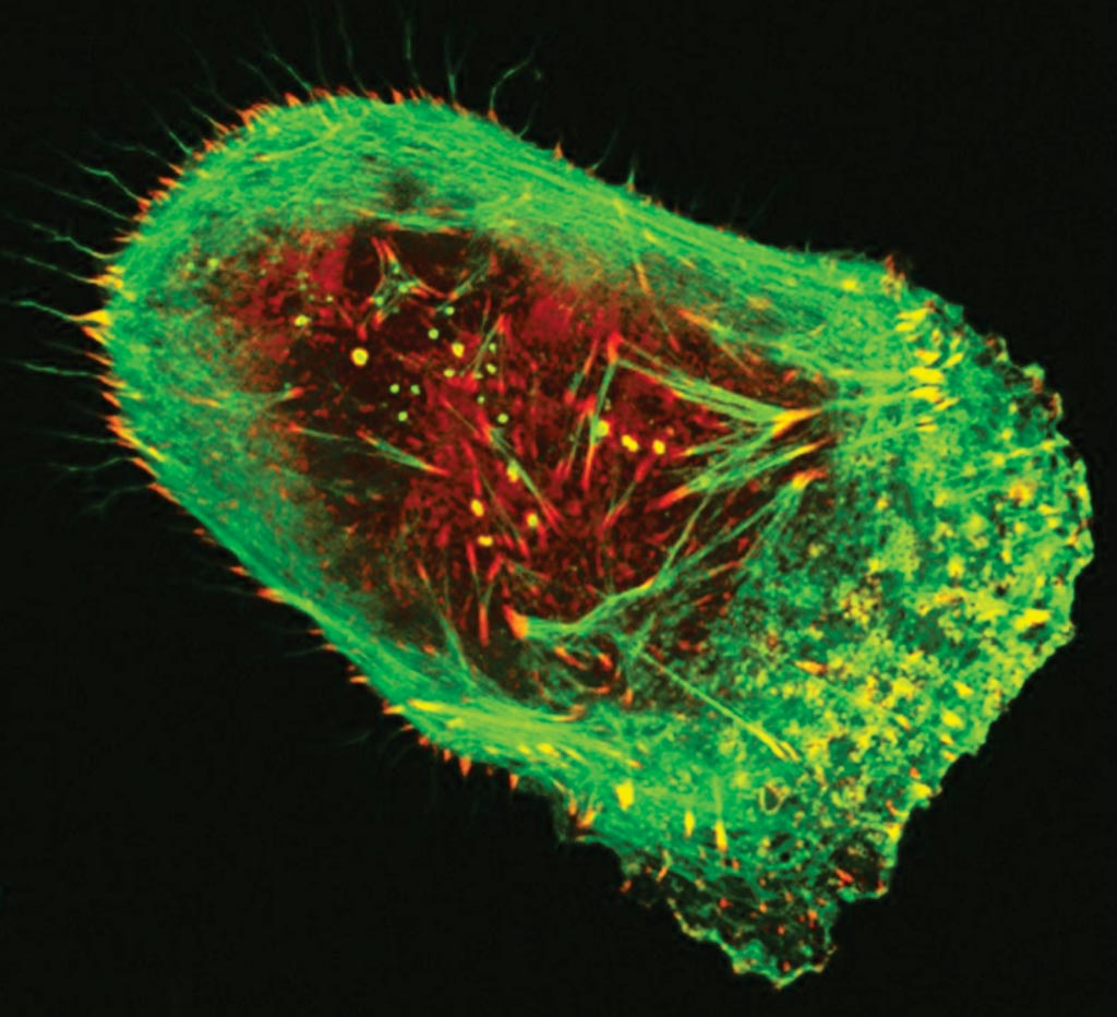 Image: A human malignant melanoma cell viewed through a fluorescent, laser-scanning confocal microscope. Invasive structures involved in metastasis appear as greenish-yellow dots, while actin (green) and vinculin (red) are components of the cell's cytoskeleton (Photo courtesy of Vira V. Artym, PhD, PMP).