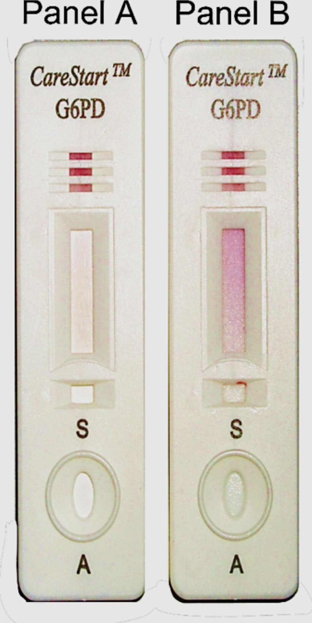 Image: The qualitative point-of-care test CareStart G6PD RDT is a visual screening test that identifies G6PD deficient patients using whole blood sample. Panel A, no color change for sample with deficient G6PD enzymatic activity; Panel B, distinct purple color for sample with normal G6PD enzymatic activity (Photo courtesy of Access Bio).